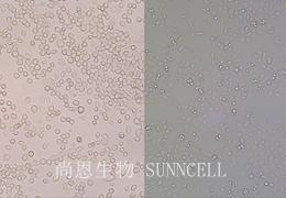 贴壁细胞和悬浮细胞培养步骤详解