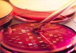 肿瘤细胞培养中的存在哪些问题?