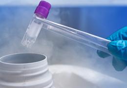 细胞冻存的10大理由以及冻存条件