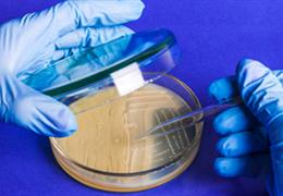 小鼠胚胎细胞原代培养的操作步骤和注意事项