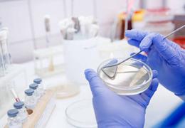 科研用细胞系鉴定的6大要求