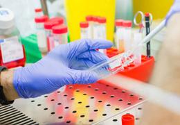 传代细胞的常规培养